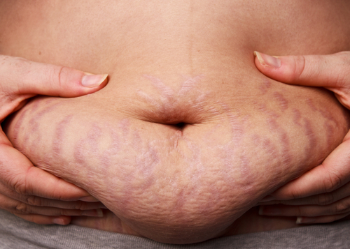 Teen Stretch Marks - Childrens Medical Center, PA